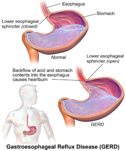 Diagrammatic illustration of an open lower oesophageal sphincter allowing acid to backflow into the eosophagus, causing GERD